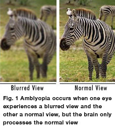 amblyopic eye
