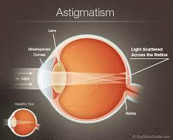 astigmatism - diagram