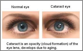 Cataracts and other eye illnesses