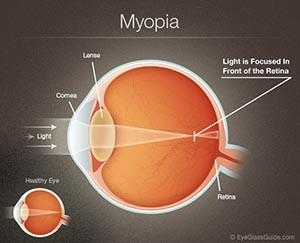 Myopia Diagram – Near Sightedness Treatment Ladner BC