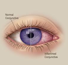 pink eye and other eye illnesses