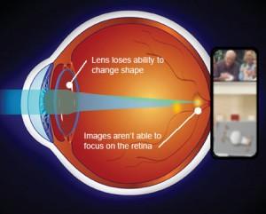 presbyopia- diagram
